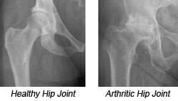 Healthy Hip and a Arthritic Hip