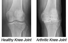 Healthy Knee Joint and Arthritic Knee Joint